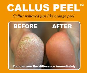 callus_peel